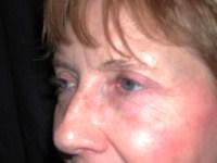 Chirurgie des paupières - Docteur BODIN paris - Apres