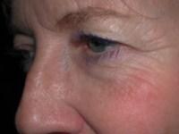 Chirurgie des paupières - Docteur BODIN paris - Avant