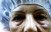 Docteur BODIN, chirurgie des paupières à Paris et Bry sur Marne, avant