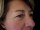 La chirurgie des paupières : poches graisseuses, blépharoplasties, docteur BODIN
