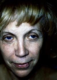 Photo de face - Lifting Paris - Docteur Bodin - Chirurgie et médecine esthétique - avant