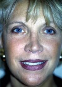 Photo de face - Lifting Paris - Docteur Bodin - Chirurgie et médecine esthétique - apres