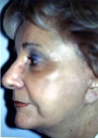 APRES : lifting endoscopique et lifting cervico facial - Lifting Paris