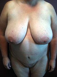 Chirurgie abdominale - Face -Après - Docteur Bernard Bodin - Paris