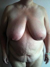 Chirurgie abdominale - Face -Avant - Docteur Bernard Bodin - Paris