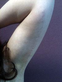 Lifting des bras - Après