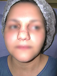 Chirurgie esthétique du nez - Avant