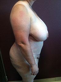 Chirurgie abdominale - Profil - Après - Docteur Bernard Bodin - Paris