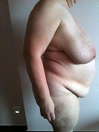Chirurgie abdominale - Profil -Avant - Docteur Bernard Bodin - Paris