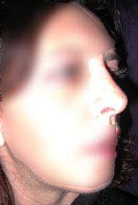 Chirurgie esthétique du nez et du menton - Après - Rhinoplastie Paris