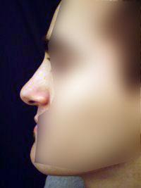 Chirurgie esthétique du nez - Après - Docteur Bodin Paris