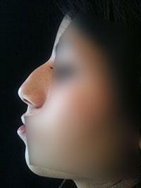Chirurgie esthétique du nez - Avant - Rhinoplastie Paris