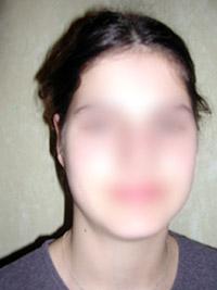 Chirugie des oreilles décollées - Après