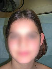 Chirugie des oreilles décollées - Avant