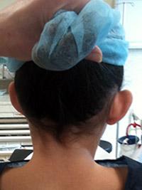 Opération des oreilles décollées - Avant - Dos