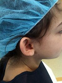 Opération des oreilles décollées - Profil - Avant