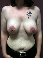 Prothèse mammaire avec cicatrice peri areolaire - Après