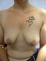 Prothèse mammaire avec cicatrice peri areolaire - Avant